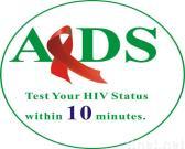 Speichel HIV-Test-Installationssatz, Haupt-HIV-Test-Installationssatz, schneller HIV-Test-Installationssatz, Test HIV-Status zu Hause in 10 Minuten mit Genauigkeit 99.8%